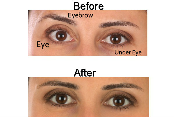Before and After Eyes 2