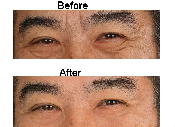Eyes Before and After 1